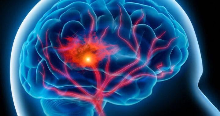Εγκεφαλικό Επεισόδιο και Αποκατάσταση